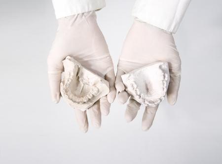 hands holding dental gypsum models, dental concept 스톡 콘텐츠
