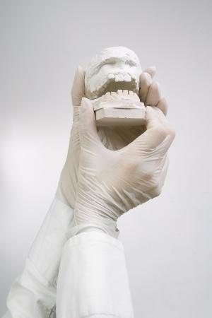 molares: Fundición Dental - tomados de la mano los modelos dentales de yeso  Concept Dental Foto de archivo