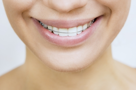 Beautiful smiling girl with retainer for teeth photo