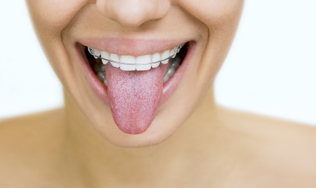 apparatus: Beautiful smiling girl with retainer for teeth sticking her tongue out, on white Stock Photo