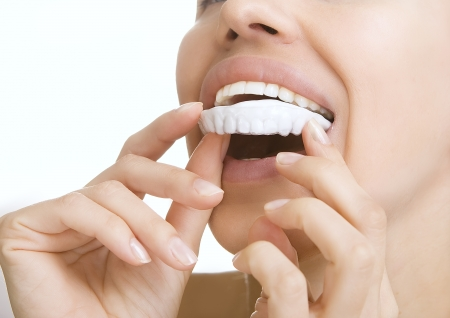 whitening: Beautiful smiling girl with tooth tray (hands holding individual tooth tray) Stock Photo
