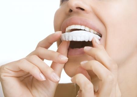 laboratorio dental: Hermosa muchacha sonriente con bandeja dental (las manos que sostienen la bandeja diente individual) Foto de archivo