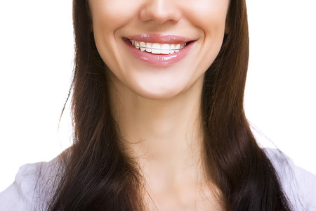 Beautiful smiling girl with retainer for teeth, isolated on white photo