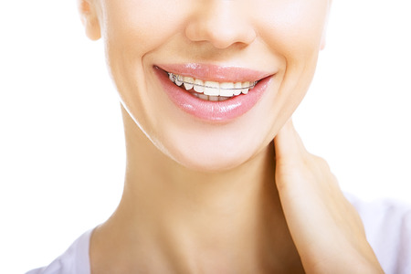 Beautiful smiling girl with retainer for teeth, on white photo