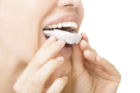 Beautiful smiling girl with tooth tray (hands holding individual tooth tray) Banque d'images