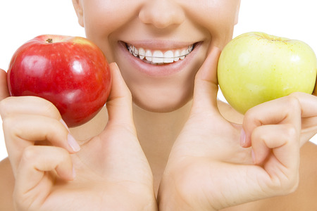 fix jaw: Beautiful smiling girl with retainer for teeth - healthy teeth and apples (Close Up, Isolated on white)