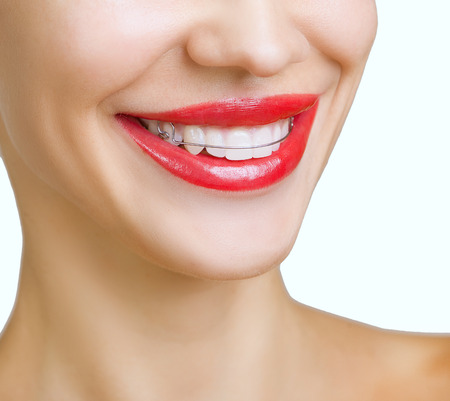 Beautiful smiling girl with retainer for teeth, and with red lipstick 版權商用圖片