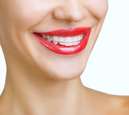 Hermosa muchacha sonriente con retenedor para los dientes, y con l�piz labial rojo photo