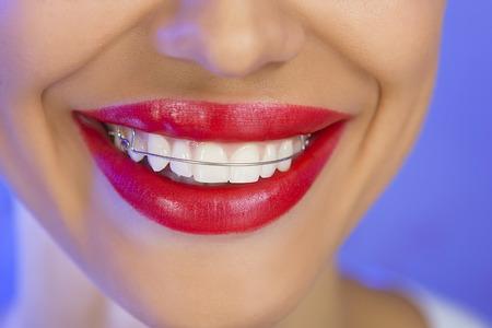 Hermosa muchacha sonriente con retenedor para los dientes, y con l�piz labial rojo (sobre un fondo azul) photo