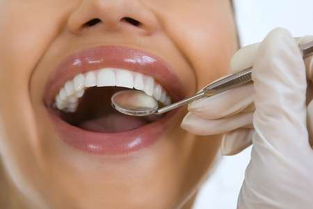 boca abierta: Primer plano de la paciente de tener sus dientes examinados por un dentista, visitar al dentista, el chequeo oral con espejo Foto de archivo