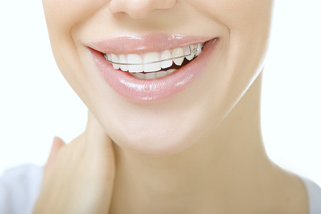 Beautiful smiling girl with retainer for teeth, close up