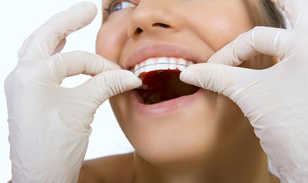 kieferorthopädische Arzt untersuchen, Zähne und Zahnfleisch von Kiefer-, Zahn-Konzept, Halter für die Zähne