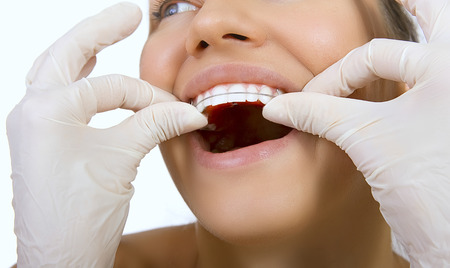 orthodontic doctor examine teeth and gums of jaw, dental concept, retainer for teeth photo