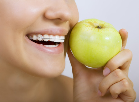 bracket: Beautiful smiling girl with retainer for teeth - healthy teeth and apple Stock Photo
