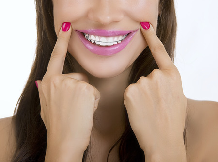 Beautiful smiling girl with retainer for teeth, blue background Stock Photo