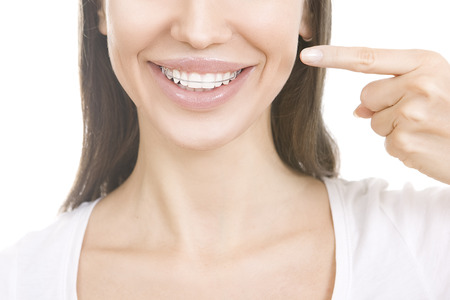 Beautiful smiling girl with retainer for teeth pointing at her smile isolated on white background