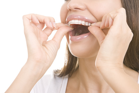 Beautiful smiling girl with retainer for teeth isolated on white background Stock Photo