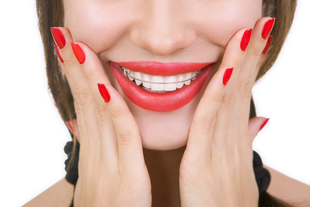 fix jaw: Beautiful smiling girl with retainer for teeth, and with red lipstick Stock Photo