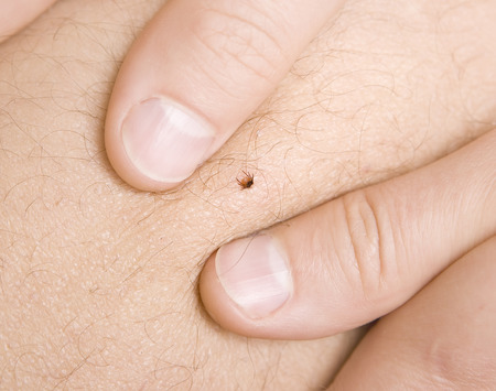 correct removing a tick from skin of patient Foto de archivo
