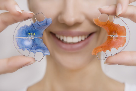 dientes: Hermosa Muchacha Sonriente Sostiene azul de retención, Paréntesis por los dientes. Tema ortodoncia dental, Métodos de Dientes (mordida) Corrección, Primer plano