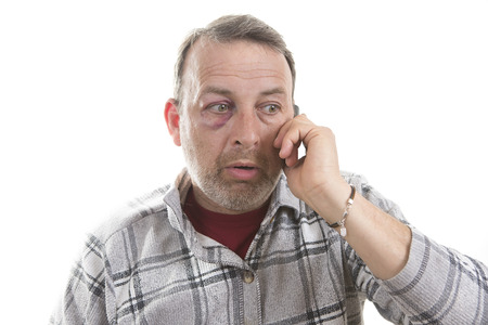 speaks: Man with Black Eye speaks by phone, Shiner. Mans face after the fight and assault. Middle-aged Caucasian male Emotional Portrait with a Real Bruise after the fight. Bully and Teaser. Stock Photo