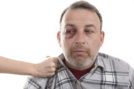 drunkenness: Female hand holding a Man with Black Eye by the collar. Shiner. Mans face after the fight and assault. Middle-aged Caucasian male Emotional Portrait with a Real Bruise. Violence in family