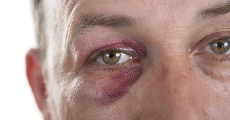 teaser: Man with Black Eye, Shiner. Mans face after the fight and assault. Middle-aged Caucasian male Emotional Portrait with a Real Bruise after the fight. Bully and Teaser. HiddenViolence