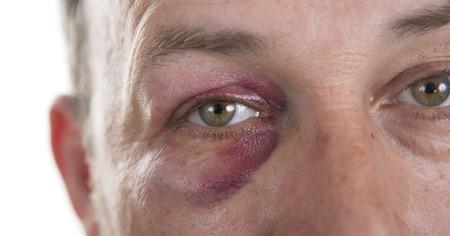 Hombre con Negro de ojos, Shiner. La cara del hombre después de la pelea y asalto. Retrato emocional de raza caucásica varón de mediana edad con una contusión real después de la pelea. Matón y bromista. HiddenViolence