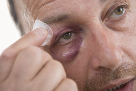 aggression: Man with Black Eye, Shiner. Mans face after the fight and assault. Middle-aged Caucasian male Emotional Portrait with a Real Bruise after the fight. Bully and Teaser. HiddenViolence