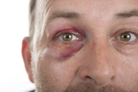 teaser: Man with Black Eye, Shiner. Mans face after the fight and assault. Middle-aged Caucasian male Emotional Portrait with a Real Bruise after the fight. Bully and Teaser. Violence. Stock Photo