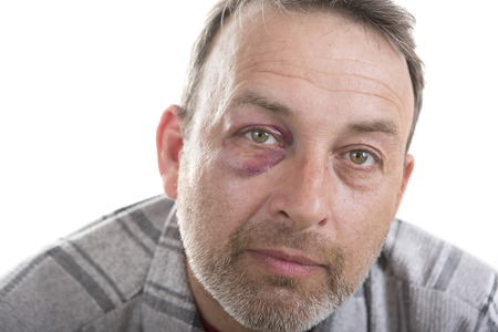 teaser: Man with Black Eye, Shiner. Mans face after the fight and assault. Middle-aged Caucasian male Emotional Portrait with a Real Bruise after the fight. Bully and Teaser. HiddenViolence. Stock Photo