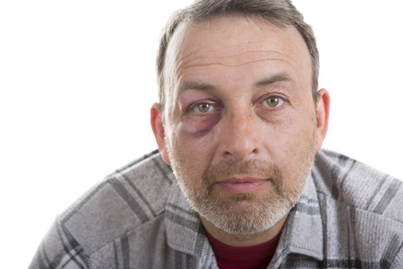 black eye: Man with Black Eye, Shiner. Mans face after the fight and assault. Middle-aged Caucasian male Emotional Portrait with a Real Bruise after the fight. Bully and Teaser. HiddenViolence