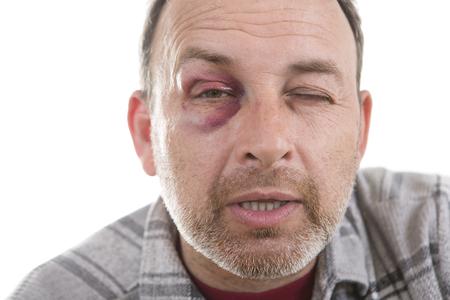 Homme avec Black Eye, Shiner. Le visage de l'homme après le combat et d'agression. homme de race blanche Portrait émotionnelle d'âge moyen avec un Bruise réel après le combat. Bully et Teaser. HiddenViolence Banque d'images