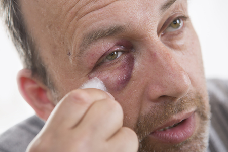 drunkenness: Man with Black Eye, Shiner. Mans face after the fight and assault. Middle-aged Caucasian male Emotional Portrait with a Real Bruise after the fight. Bully and Teaser. HiddenViolence