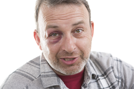 teaser: Man with Black Eye, Shiner. Mans face after the fight and assault. Middle-aged Caucasian male Emotional Portrait with a Real Bruise after the fight. Bully and Teaser threatens. HiddenViolence Stock Photo