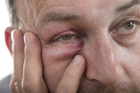 teaser: Man with Black Eye, Shiner. Mans face after the fight and assault. Middle-aged Caucasian male Emotional Portrait with a Real Bruise after the fight. Bully and Teaser. Violence
