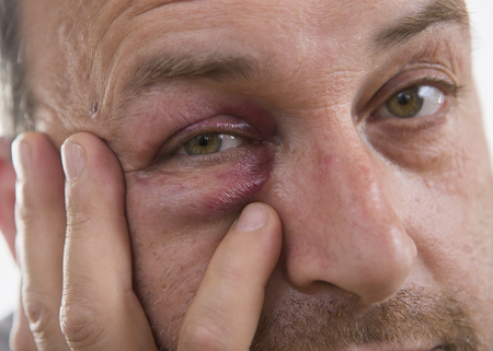 alcoholic man: Man with Black Eye, Shiner. Mans face after the fight and assault. Middle-aged Caucasian male Emotional Portrait with a Real Bruise after the fight. Bully and Teaser. Violence