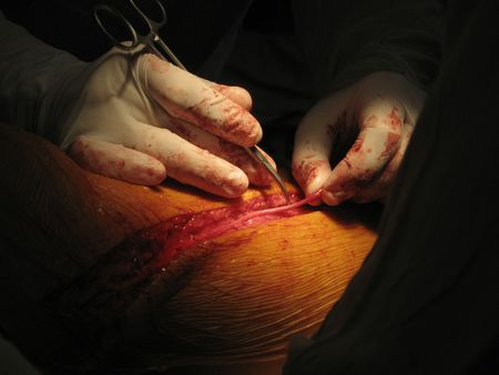 A surgeon performs vein separation for coronary artery bypass surgery photo
