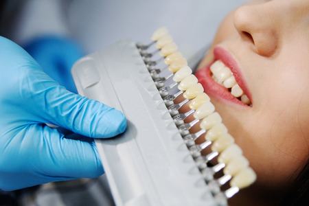 dental examination: choose the color of the teeth. Girl in dentists chair Stock Photo