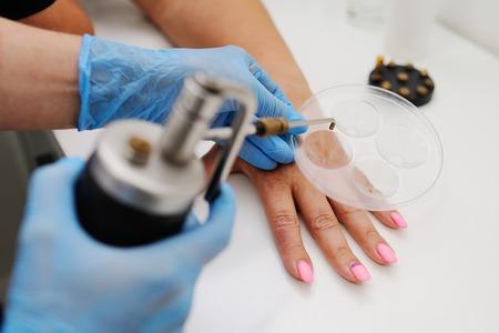 La eliminación de verrugas en clínica dermatológica. El médico extrae formaciones de la piel con un equipo especial - kriodestruktor. Papilomas, verrugas, oncología