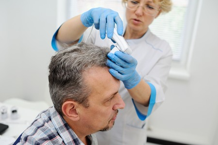 baldness. diagnostics hair and scalp. Trihoskopiya. Doctor examine patient male hair a special apparatus. Stock Photo