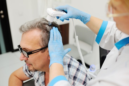 doctor examine: baldness. diagnostics hair and scalp. Trihoskopiya. Doctor examine patient male hair a special apparatus. Stock Photo