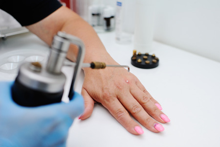 nitrogen: Removal of warts in dermatology clinic. The doctor removes skin formations with special equipment - kriodestruktor. Papillomas, warts, oncology