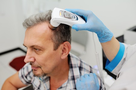 doctor examine: diagnostics hair and scalp. Trihoskopiya. Doctor examine patient male hair a special apparatus