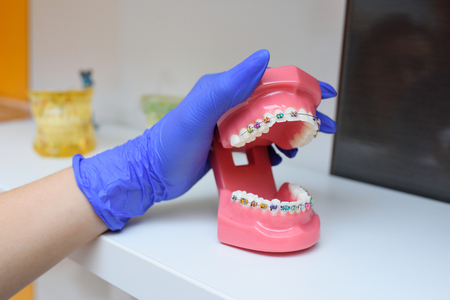 colored braces on teeth on an artificially jawed closeup Stock Photo