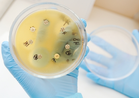 Petri dishes in the bacteriological laboratory closeup