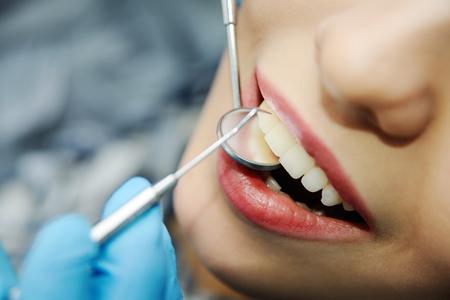 teeth of a beautiful girl closeup. girl at the dentist Stok Fotoğraf