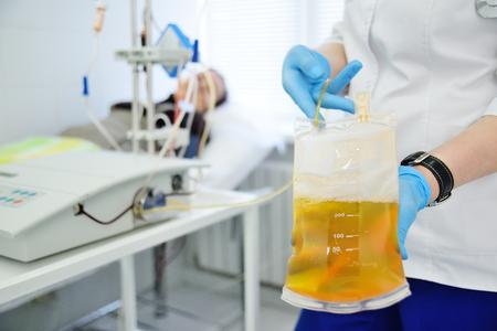 procedure plasmapheresis - the procedure of purification of blood and plasma from toxins Foto de archivo
