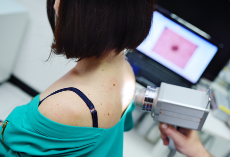 melanoma diagnosis. examination of birthmarks and moles.the doctor examines the patient's mole