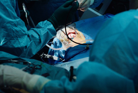 neurosurgeons perform surgery to excise a brain tumor in a modern surgical operating room